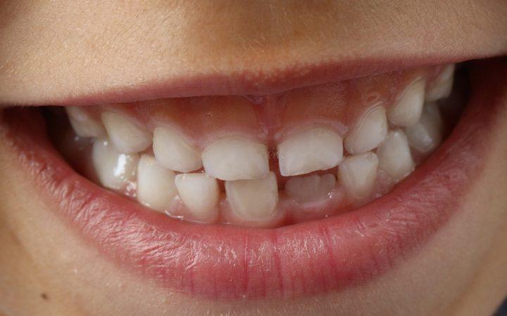 Richtig Zähne putzen – Tipps für Babys und Kleinkinder
