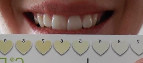BeconfiDent 3 - Weiße Zähne mithilfe einer Schallzahnbürste