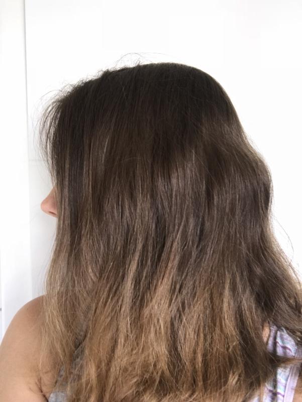 Haartransplantation, der erste Schritt ins Selbstbewusstsein