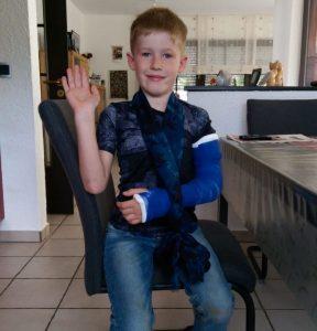 Jamie mit Gipsarm 1 288x300 - Unser Iron Man - Fixateur externe beim Kind