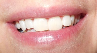 PRO EXPERT 5 - Pro-Expert Zahncreme von Oral-B und blend-a-med
